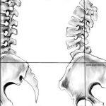 בטן בולטת, בטן חלשה, עומס על הגב וכאבי גב, אלו תופעות הלוואי של סיבוב אגן לפנים