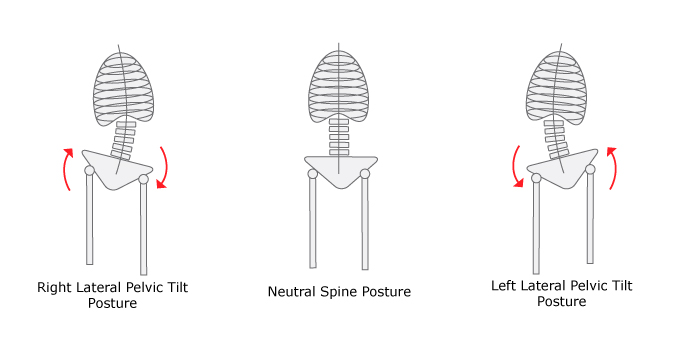 lateral-pelvic-tilt-graphic