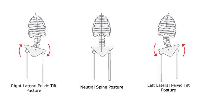 lateral-pelvic-tilt-graphic
